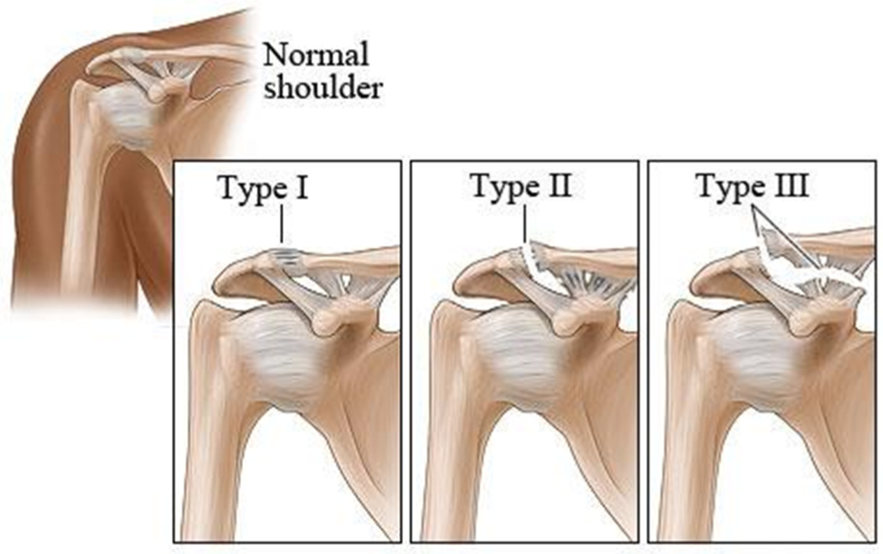 dislocated shoulder recovery