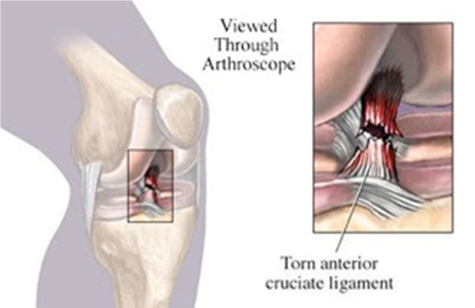 acl tear | brisbane knee and shoulder clinic, Human Body