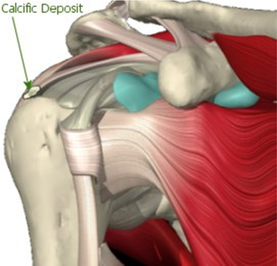 Calcific Tendonitis | Brisbane Knee and Shoulder Clinic