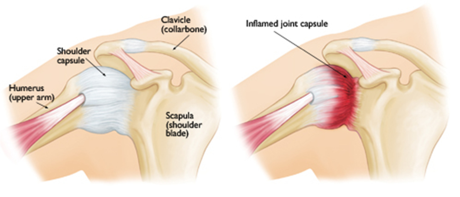 Frozen shoulder and physical therapy - What Symptoms Should I Look Out For