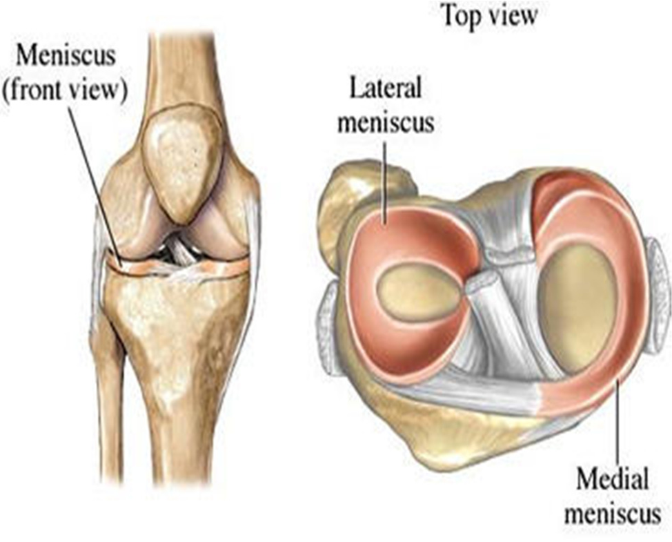 post how to tell acl isnt torn
