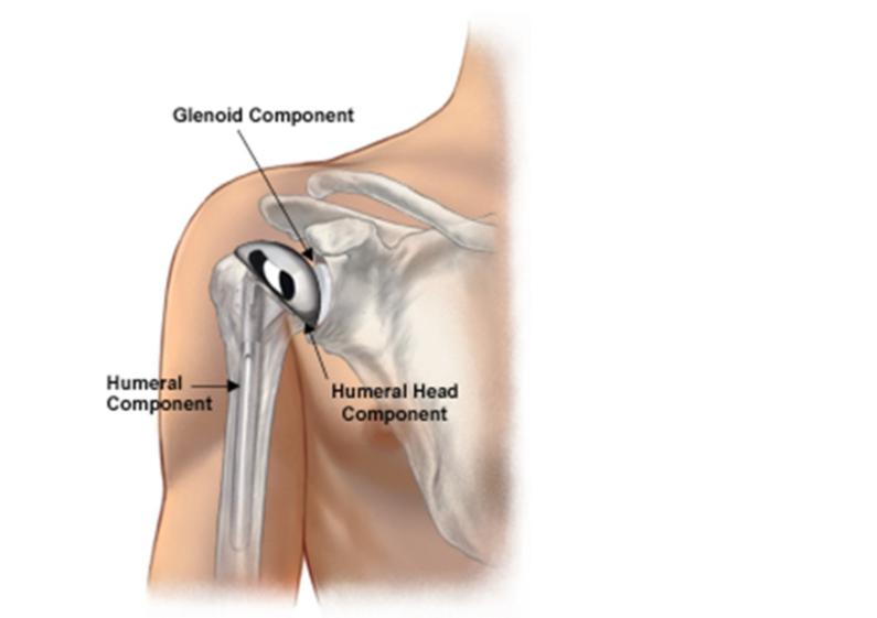 Shoulder Arthritis Brisbane Knee And Shoulder Clinic