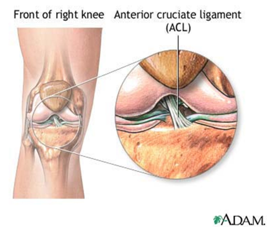 Acl Tear Brisbane Knee And Shoulder Clinic Dr Kelly
