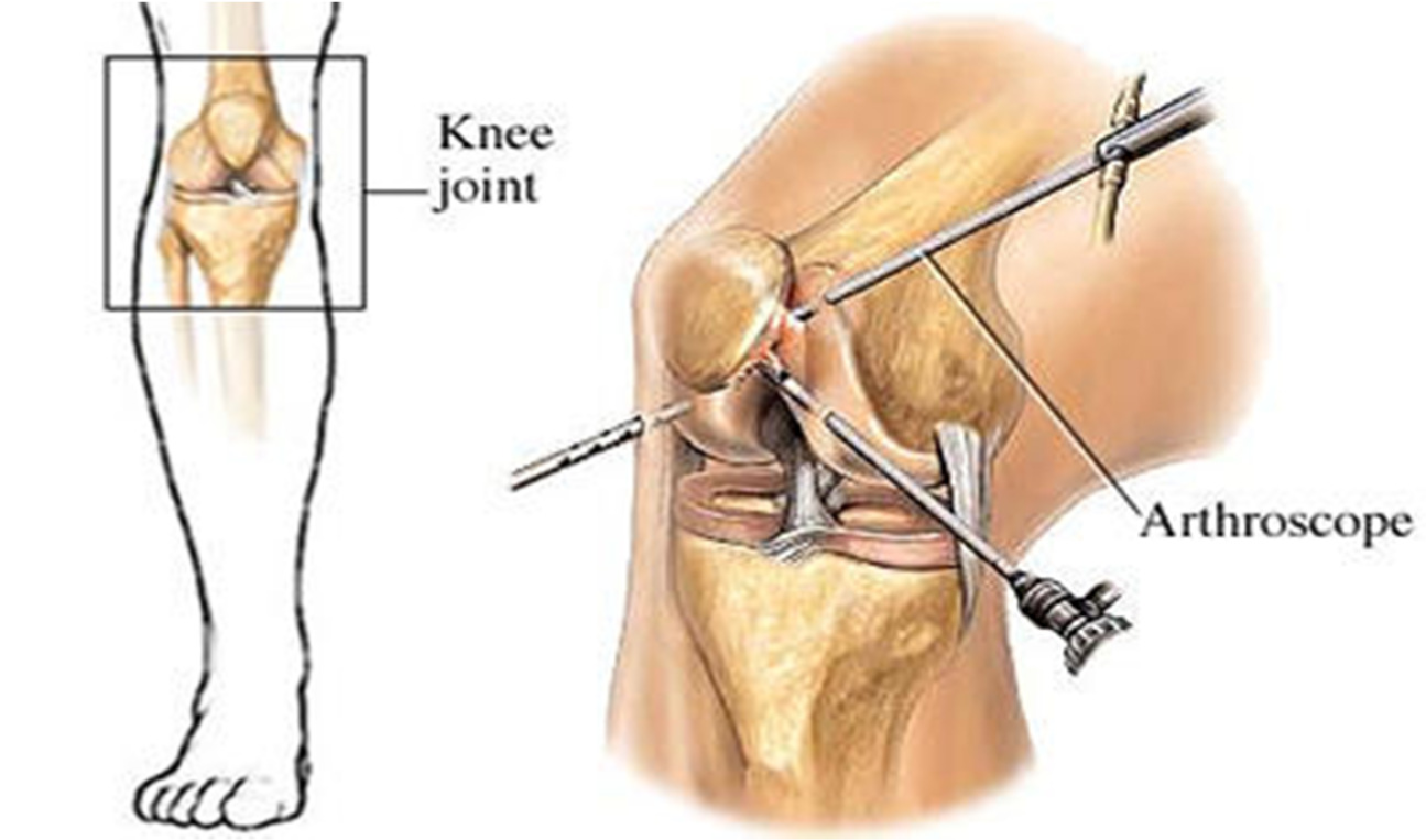 Anterior Knee Pain Knee And Shoulder Clinic Dr Kelly