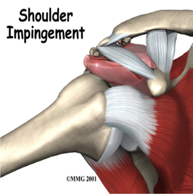 shoulder impingement Shoulder impingement can be fixed with these 7 simple strategies let me share with you how to completely eliminate your shoulder pain once and for all.