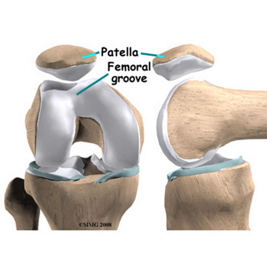 patella instability brisbane knee and shoulder clinic dr