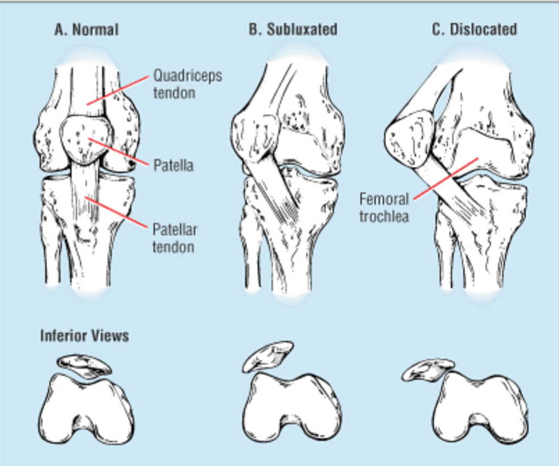 3647169166 Patella Instability | Brisbane Knee and Shoulder Clinic | Dr ...