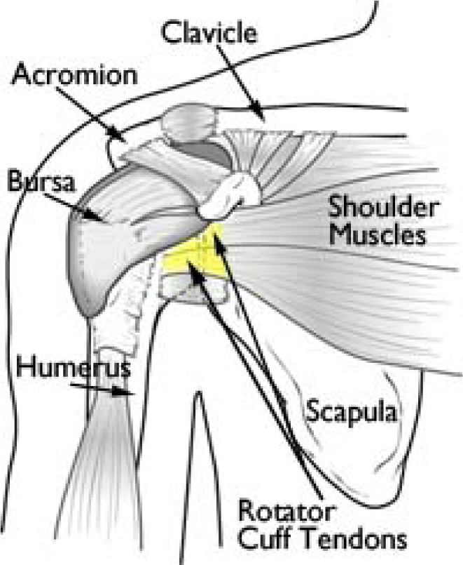 Rotator Cuff Repair Brisbane Knee And Shoulder Clinicbrisbane Knee